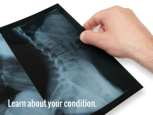 Treatments and Surgery for Scoliosis