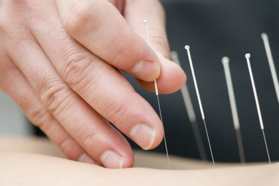 Relieve Spine Pain with Acupuncture