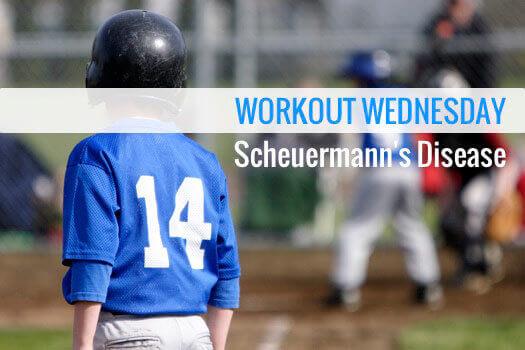 Scheuermanns Disease