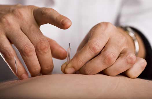 Can Acupuncture Cure Neck Pain