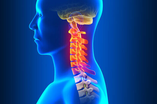 Signs and Symptoms of Cervical Spine Stenosis