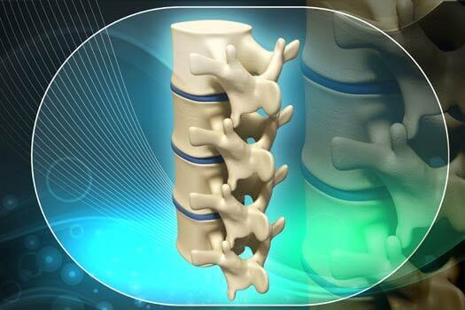 New Spinal Implant Procedure at LA Spine