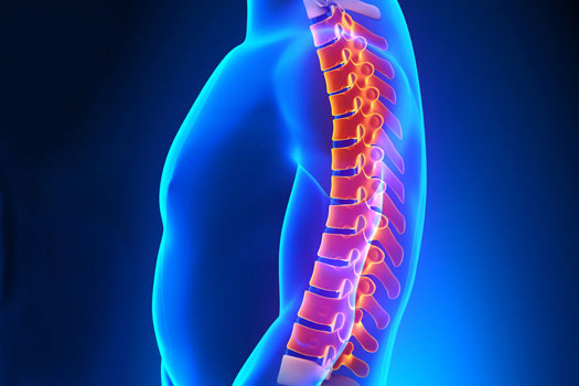 Different Spine Surgeries