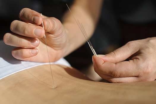 Try Acupuncture Before Spinal Surgery in Santa Monica, CA