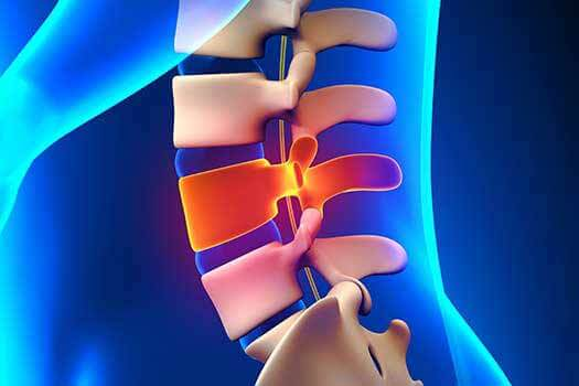 Learn about Spinal Franctions in Los Angeles, CA