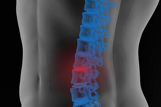 Lumbar Spine Cyst