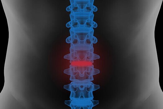 Spine Fracture Healing in Los Angeles, CA