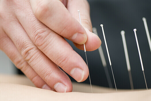 Acupuncture Surgery for Back Pain in Los Angeles, CA