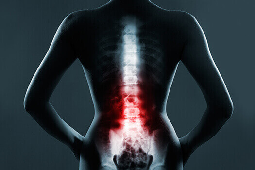 Causes of Spinal Pain in Los Angeles, CA