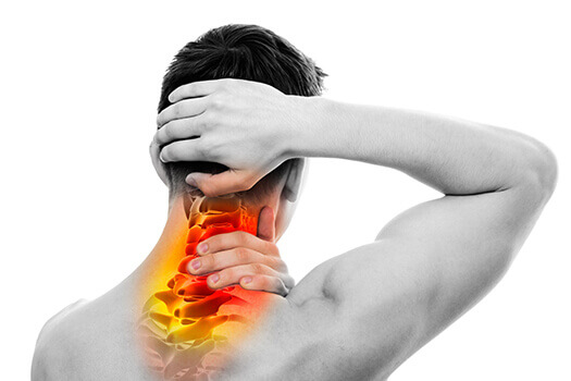 How to Identify Cervical Radiculopathy and How is Caused in Santa Monica, CA