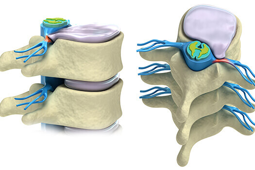 Advantages and Disadvantages of Spinal Cord Stimulation