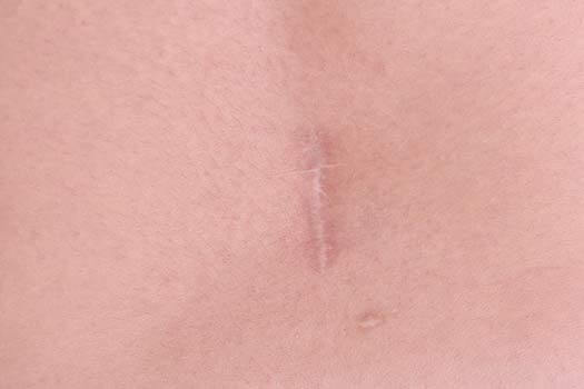 Scar Tissue After Back Surgery
