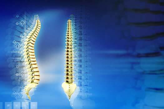 How to Prevent Narrowing of the Spinal Canal in Los Angeles, CA