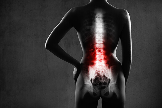 Maintaining Emotional Health After Spinal Surgery in Los Angeles, CA