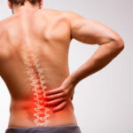 What Causes Spinal Ganglion Cysts & How Do You Treat Them?