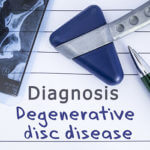 Preventing Degenerative Disc Disease from Getting Worse