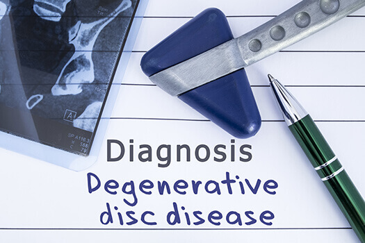 How to Prevent Degenerative Disc Disease