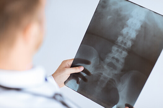 What Spinal Surgery Can & Cannot Fix in Los Angeles, CA
