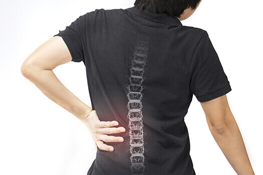 Spinal Fracture Types
