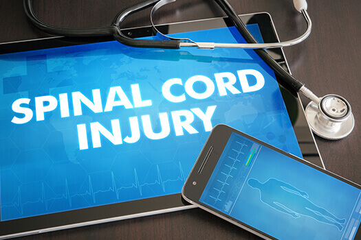 Spinal Injuries Types on Cleaning Staff in Los Angeles, CA