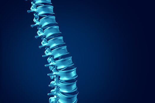 3 Ways to Treat Spinal Cysts in Los Angeles, CA