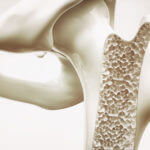 An Overview of 6 Common Bone Diseases
