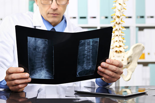 How to Tell When Spine Surgery Is Necessary in Los Angeles, CA