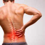 3 Common Types of Spinal Disc Tears