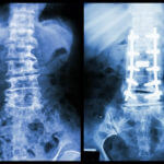 Advantages & Disadvantages of Scoliosis Surgery