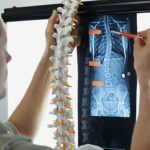 What Are the Treatments for Spinal Discs That Are Thinning?