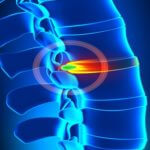 Know Your ABCs: Causes and Symptoms of Disc-Related Pain