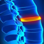 When Is Surgery for a Herniated Disc Necessary?