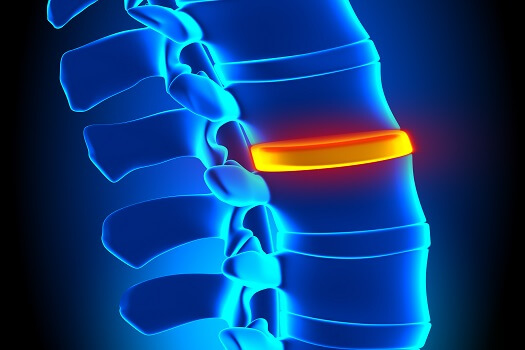 Is Surgery for a Herniated Disc Compulsory in Los Angeles, CA