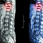 Diagnosis & Treatment of Spinal Neurofibromas