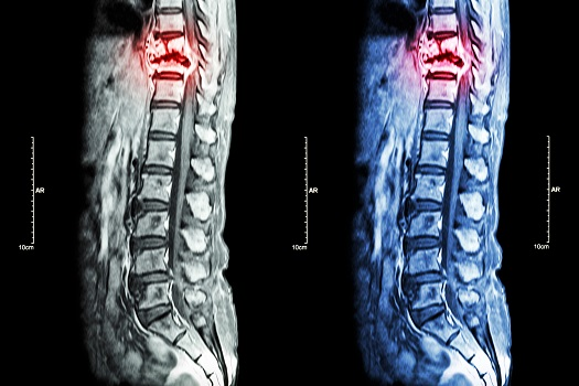 How to Treat Spinal Neurofibromas in Los Angeles, CA