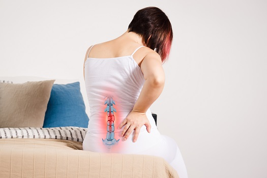 Treatment Options for a Sequestered Spinal Disc in Los Angeles, CA