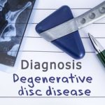 Degenerative Disc Disease: What Are the Symptoms, & How Is It Treated?
