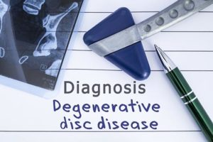 What Are the Symptoms of Degenerative Disc Disease & How Is It Treated in Los Angeles, CA