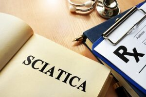 How Long Will Sciatica Last in Los Angeles, CA