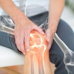 Can Knee Pain Be Caused by Sciatica?