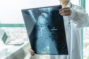 Tips People Can Benefit from Lumbar Fusion Surgery in Los Angeles, CA