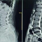 Risk Factors for Spine Tumors in Kids