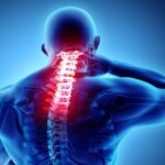 Ways to Treat Scarred Spinal Nerves