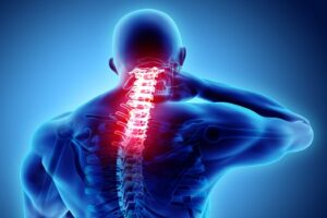 Treatment for Spinal Nerve Scarring in Los Angeles, CA